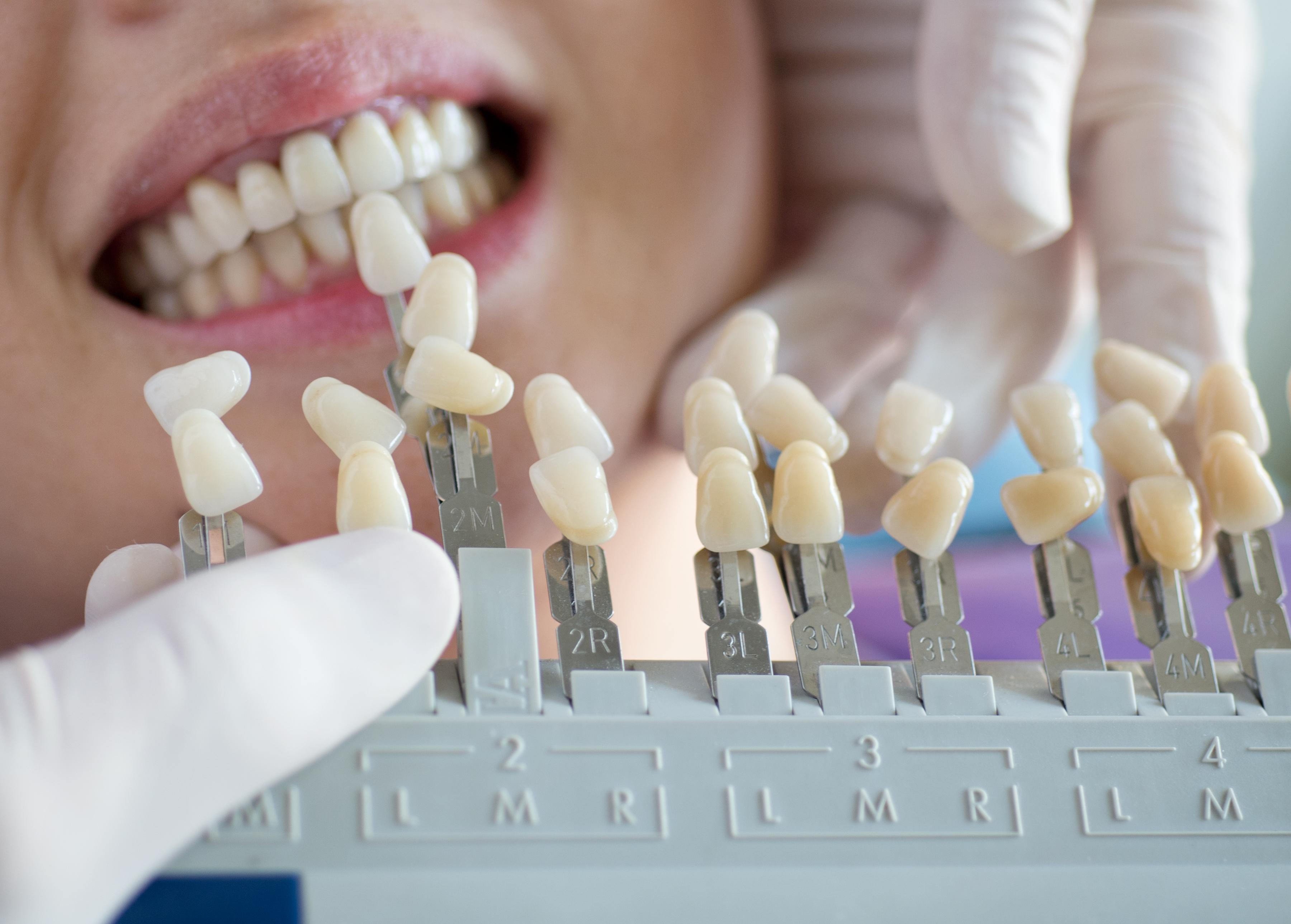 Cl nica dental tirma l pez dentistas las palmas - Dentistas en las palmas ...